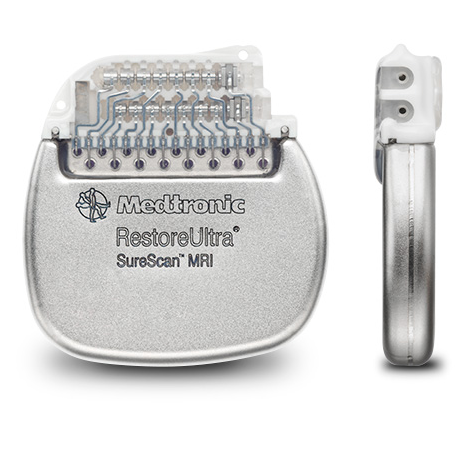 Medtronic_RestoreUltra_SureScan_MRI-e1459829445465.png